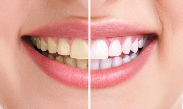 cosmesi dentale